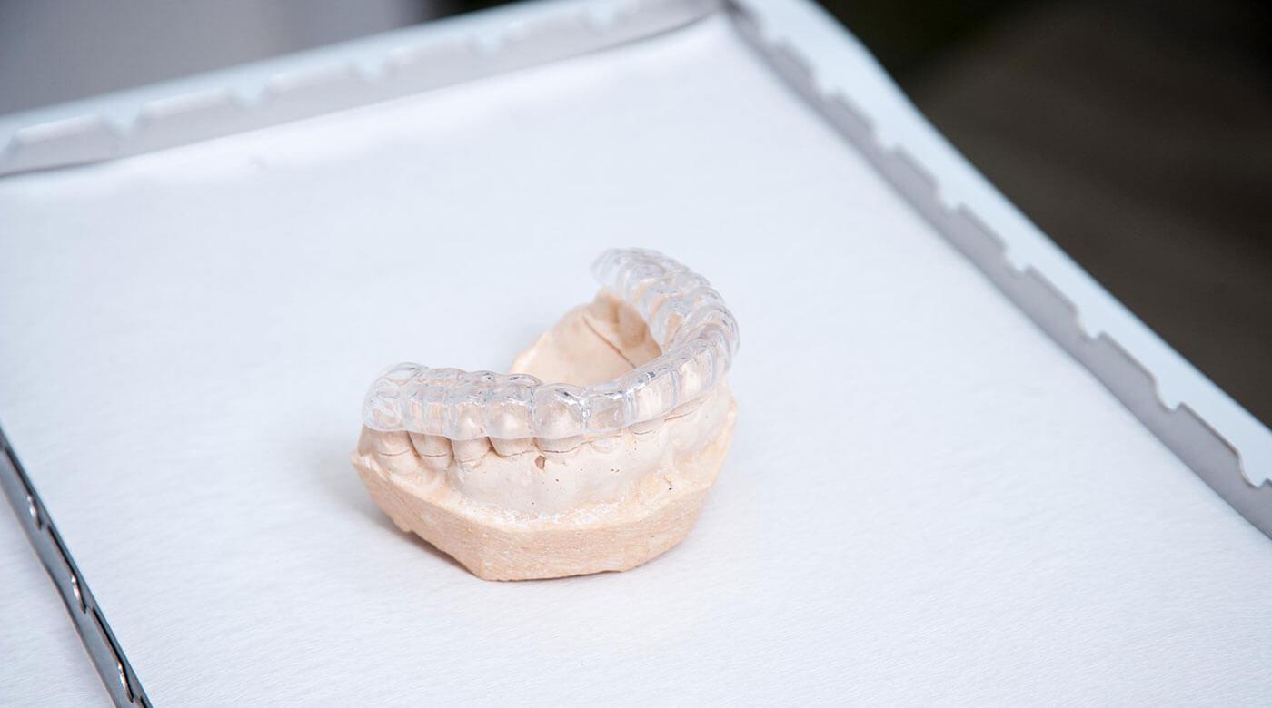 Foto zur Seite: Funktionsdiagnostik – Zentrum für Zahn & Chirurgie in Langen