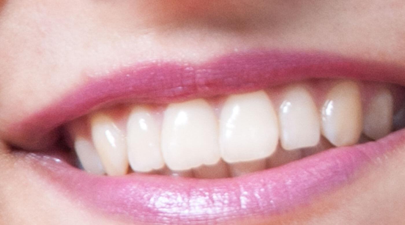 Foto zur Seite: Parodontologie – Zentrum für Zahn & Chirurgie in Langen