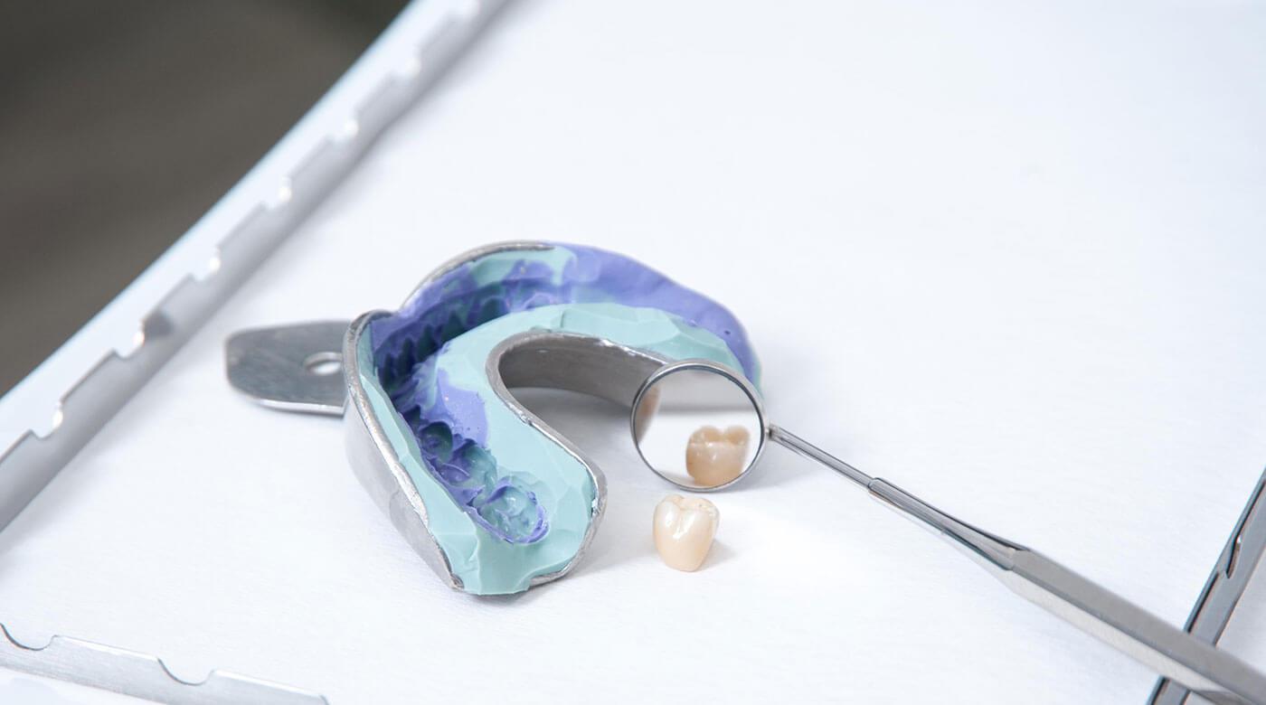 Foto zur Seite: Zahnersatz – Zentrum für Zahn & Chirurgie in Langen